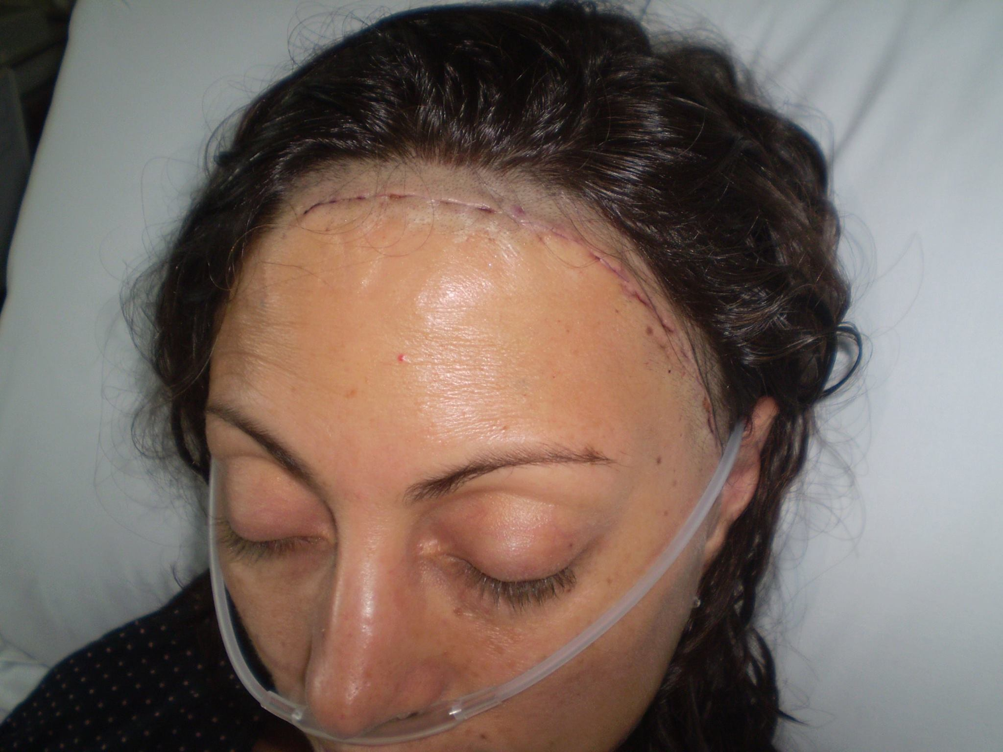 Recovering from cranial surgery, 2010.